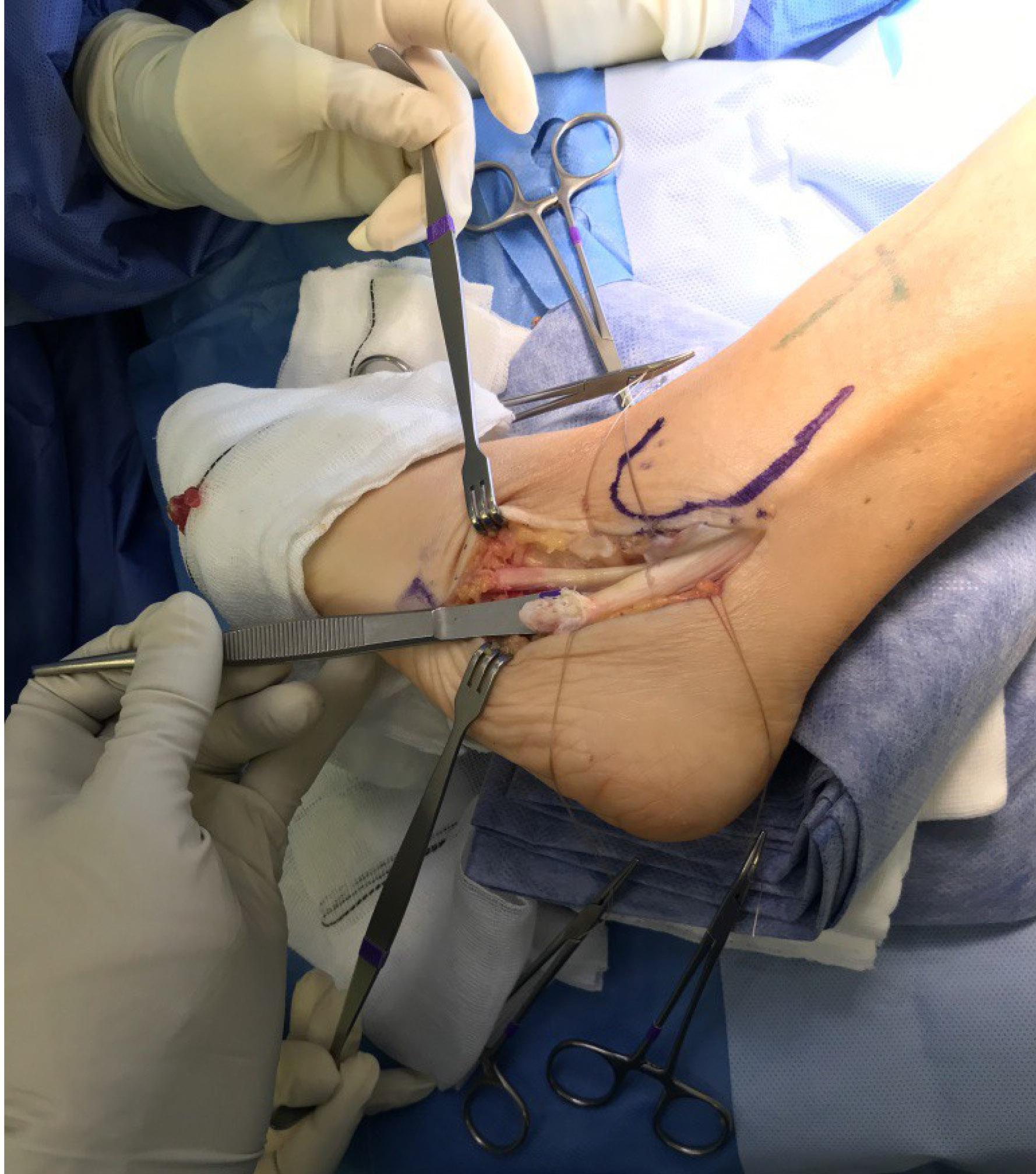 Tendon Repair Surgery In Iran