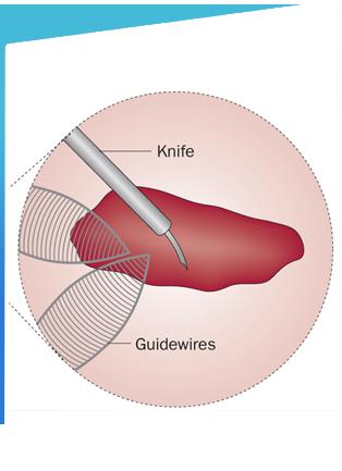 Endopyelotomy Surgery