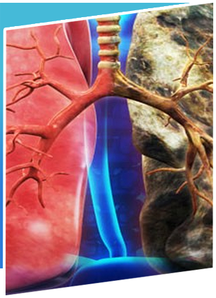 Lung-Cancer Treatment