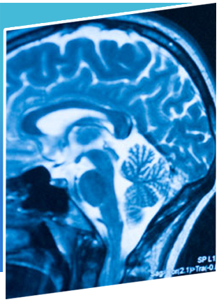 Neuro Oncology