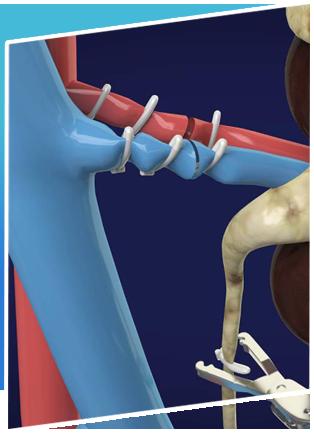 Radical Prostatectomy Surgery