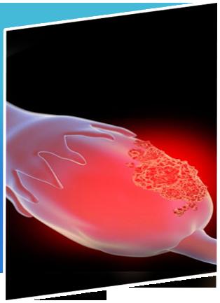 Ovarian Cancer Treatment