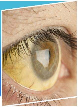 Retinoblastoma (Eye Cancer) Treatment