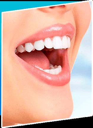 Cosmetic Smile Designing