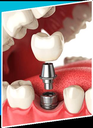 Dental Treatment Dental Implant