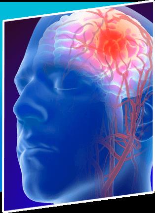 Intracranial Aneurysm Surgery