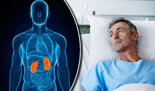 Kidney Cancer Treatment In Iran