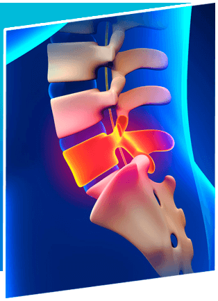 Lumbar Discectomy