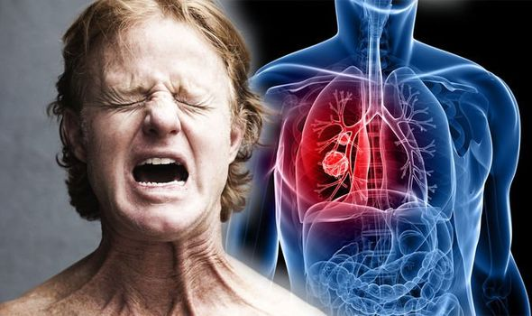 Lung Cancer Treatment In Iran