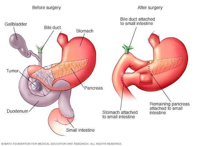 Pancreatic Cancer Treatment And Surgery In Iran