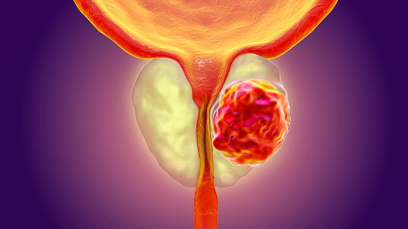 Prostate Cancer Treatment In Iran