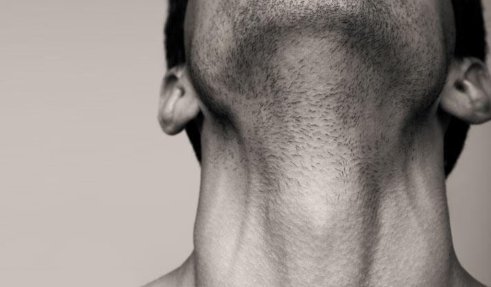 Thyroid Cancer Treatment In Iran