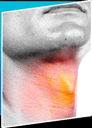 Thyroplasty