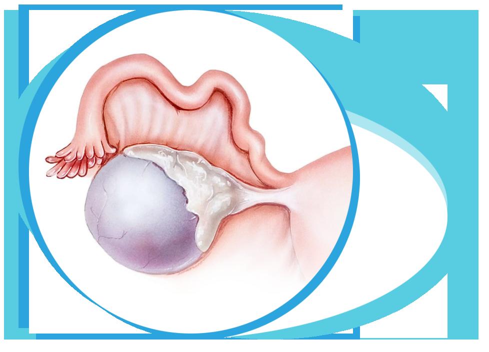 Ovarian cyst in Iran