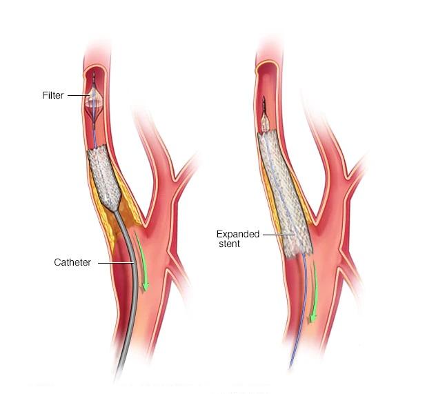 Carotid Angioplasty In Iran